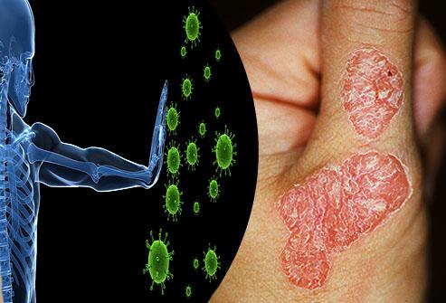 La asma bronquial la psoriasis